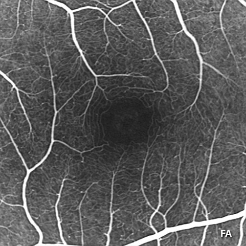 After-Hybrid Angiography