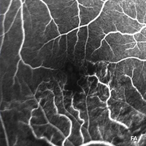 After-Branch Retinal Vein Occlusion