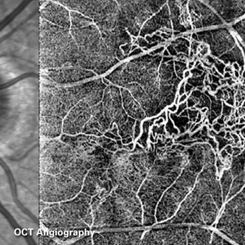 Vue en OCT-Angiographie