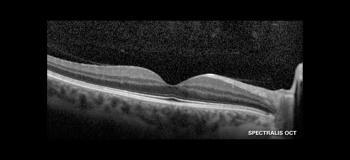 Macula Spectralis OCT