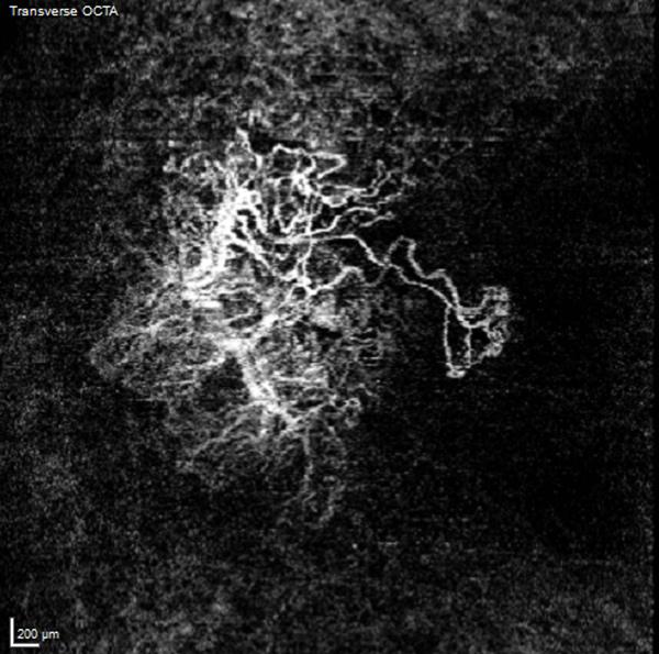 OCT-Angiographie après correction des artefacts