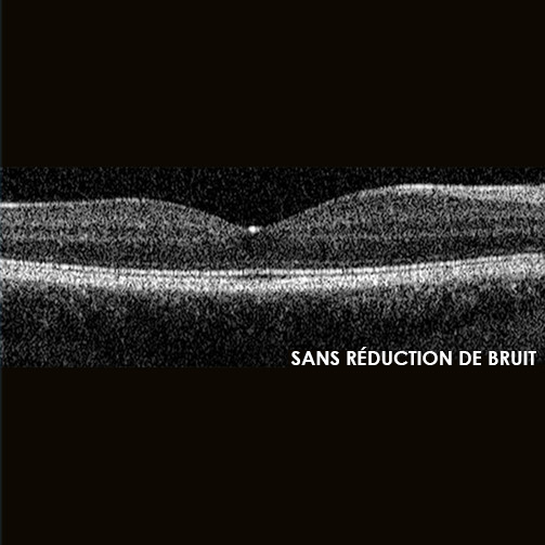 Sans réduction de bruit