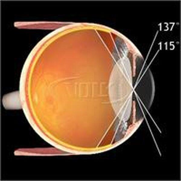 PDT Lens 2