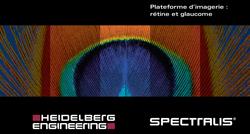 Brochure SPECTRALIS