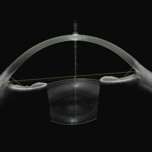 Module segment antérieur Antérion