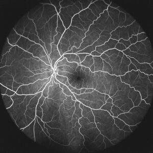 Angiographie oculaire micro anévrismes