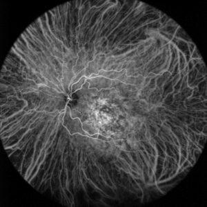 Angiographie de l'œil