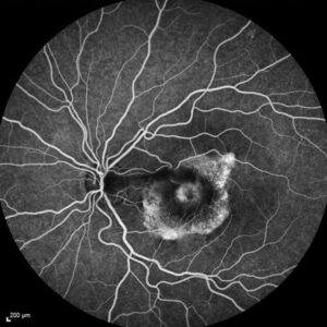 Imagerie angiographie oculaire