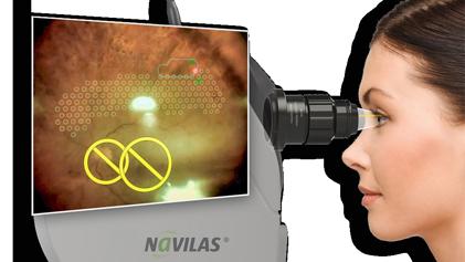Laser Navilas PPR sans contact iridotomie