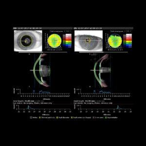 Biométrie cristallin Évaluation préopératoire de la cataracte 2