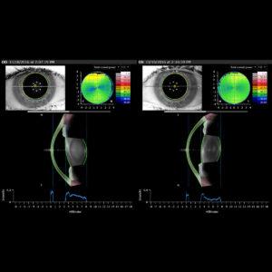 Biométrie cristallin Évaluation préopératoire de la cataracte