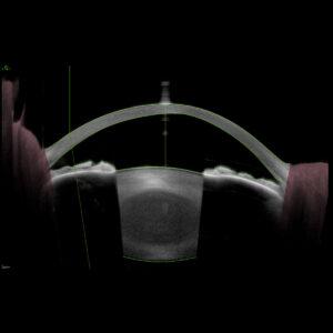 Biométrie segment antérieur Oeil de kératocone