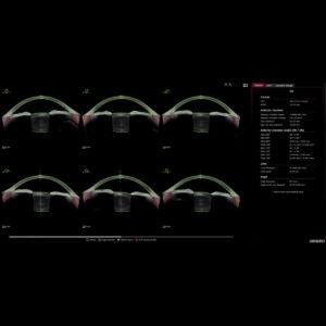 Biométrie segment antérieur Santé oculaire Multiview