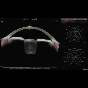 Biométrie segment antérieur Yeux sains 2