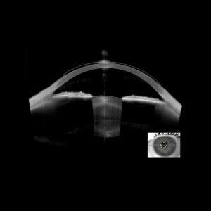 Imagerie haute définition Lentille de contact rigide