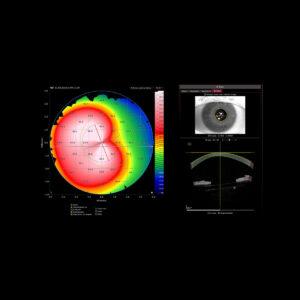 Topographie cornéenne - Oeil du kératocône - courbure axiale antérieure, caméra infrarouge et image OCT