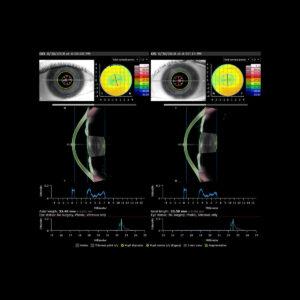 Évaluation préopératoire de la cataracte avec cartographie de la puissance cornéenne total