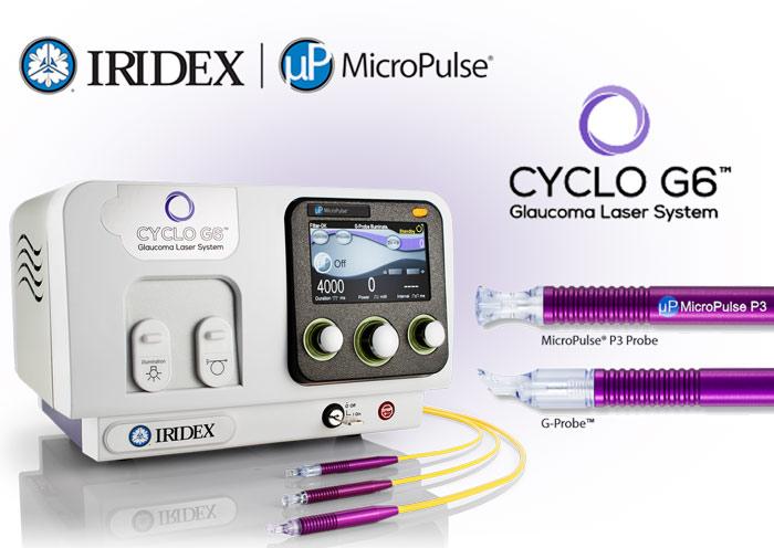 Laser Cyclo G6 pour traitement du glaucome