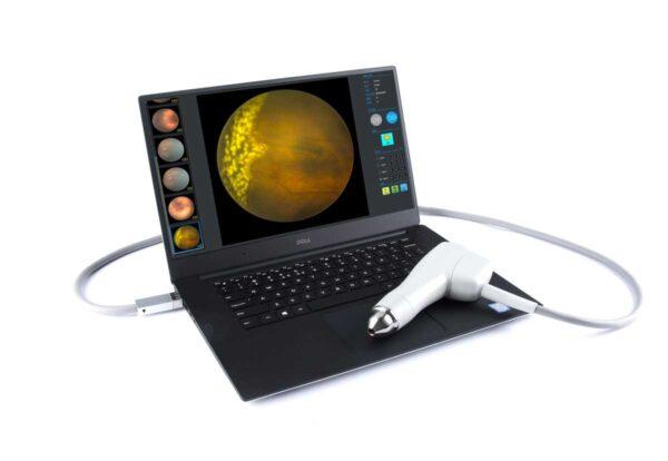 Caméra rétinienne pour la rétinopathie des prématurés